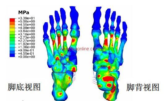 同步态周期下对足部关节和韧带的影响
